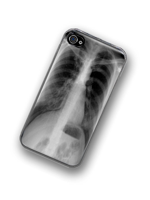 X ray iPhone skins